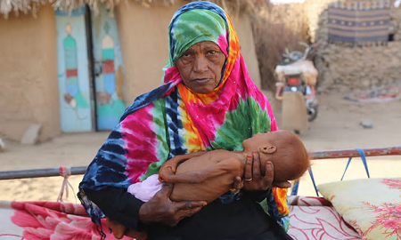 Yemen: Death by Bombing or Hunger